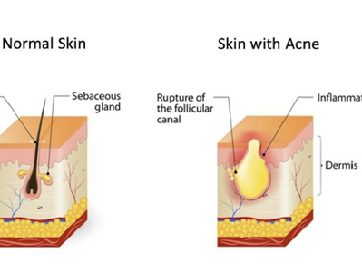 Management of Acne and Acne Scarring: Current options