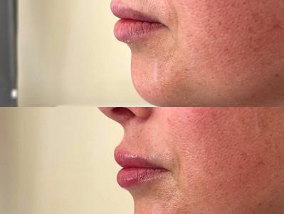 Lip Augmentation – Less is more