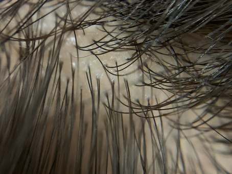 ベトナムに住む日本人の頭皮、髪の毛事情の現実(橋本編)