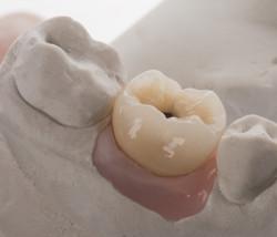 Coroa Metalocerâmica Sobre Implante