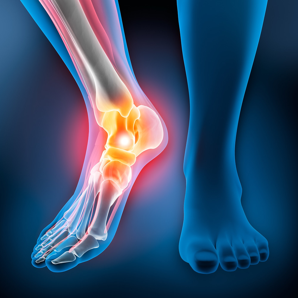 Ankle Injuries from auto accident and slip and fall accident