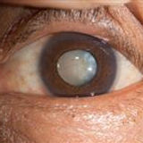 Cataract Image- AAO.jpg