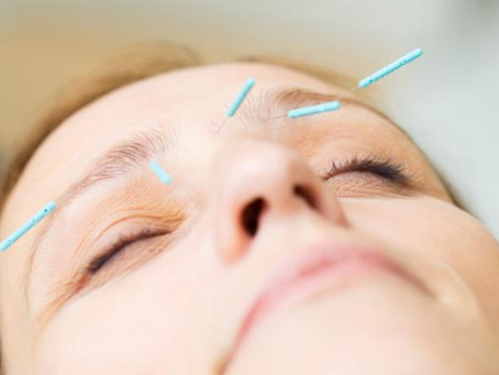 Could acupuncture actually work to cure glaucoma?