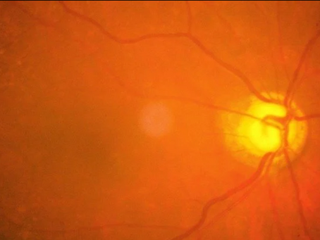 History Made: Regenerated Optic Nerve Cells in Mice