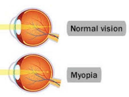 Do Genetics and the Environment Affect Myopia?