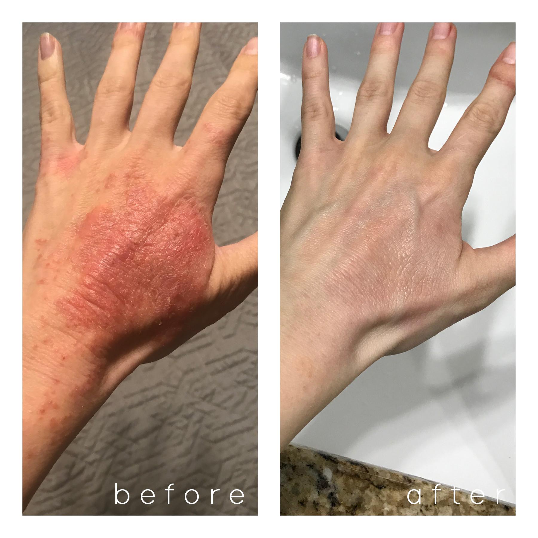 pompholyx eczema (in progress)