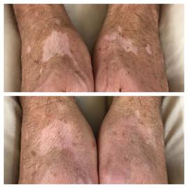 vitiligo (in progress)