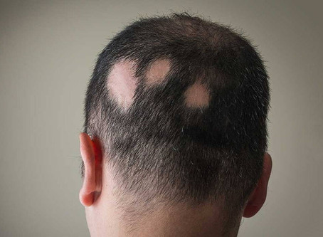 Hair Loss in Chinese Medicine