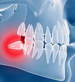 wisdom-teeth-removal-scranton.jpg