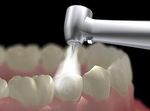 Lamb-Dental-Tooth-Colored-Filling-Amaril