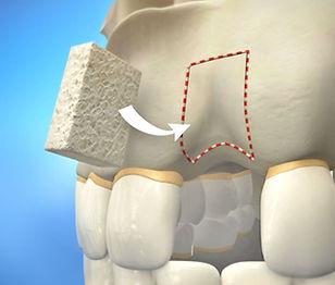 block bone graft.jpg