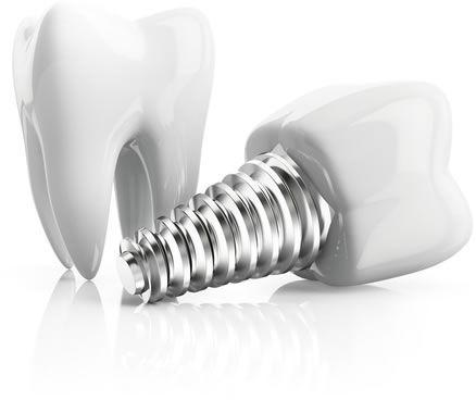 dental-implant1.jpg