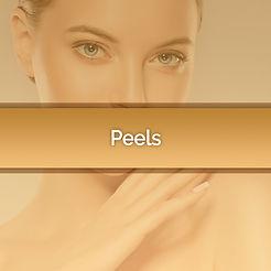 peels-feature.jpg