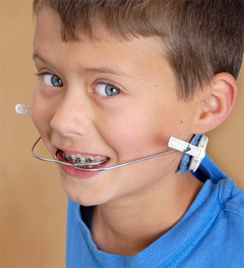 orthodontic-headgear.jpg