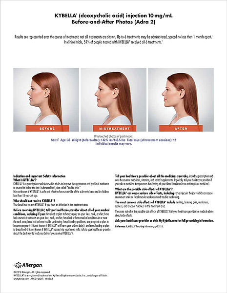 kybella-before-and-after.jpg