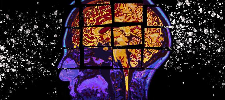 MIT-Alzheimers-Forecasting-01-PRESS.jpg