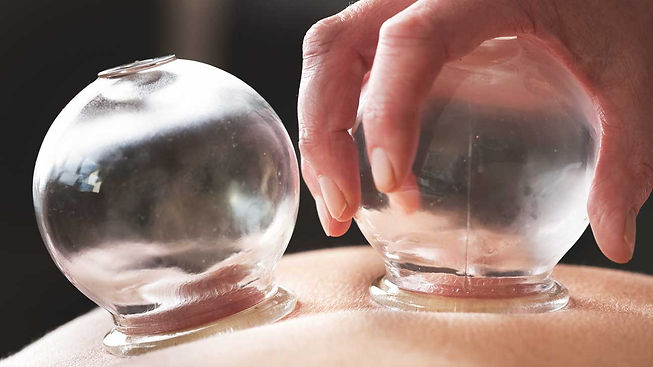 081016_cupping_BODY.jpg