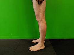 Lateral View of Left Knee