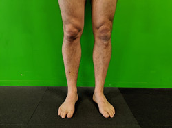 Anterior View of Knees