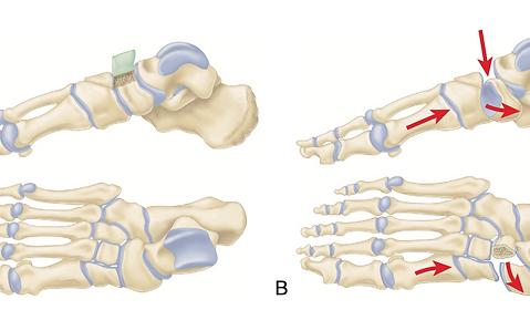 Переломы костей стопы