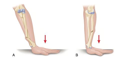 Лечение костей предплечья(лучевой и локтевой кости)