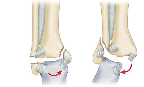 Переломы костей голени(большеберцовой и малоберцовой)