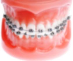 Deamon Orthodontic - paling ampuh untuk merapikan gigi anda, jangan mau tertipu oleh merek lain yang lebih murah.