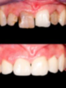 carillas dentales Las Palmas, odontología Las Palmas