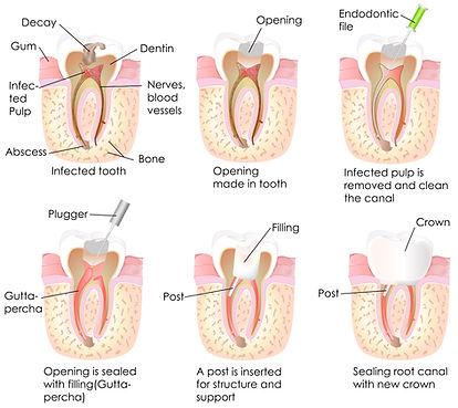 Desvitalización dental las Palmas, devitalización