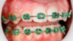 ortodoncia las palmas, ortodoncia sistema damon las palmas