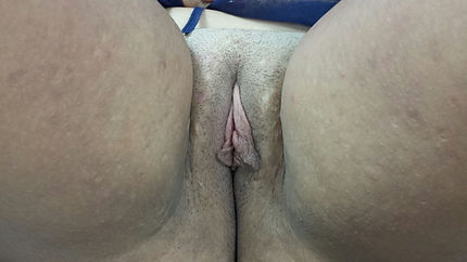 labioplastia Las Palmas de Gran canaria