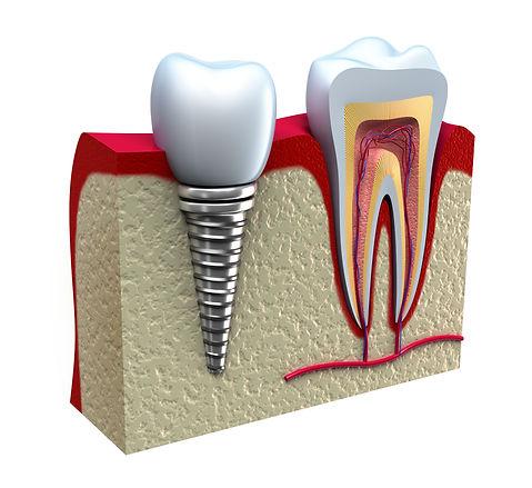 Implantes dentales Las Palmas, Implante y corona Las Palmas