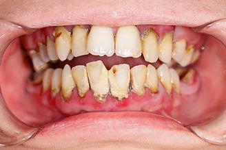 periodoncia Las Palmas, odontología Las Palmas,