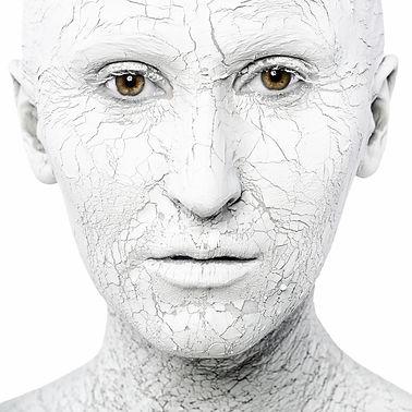Fotoenvejecimiento facial Las Palmas