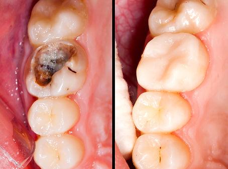 desvitalización dental Las palmas, desvitalización