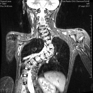 IRM septembre 2017