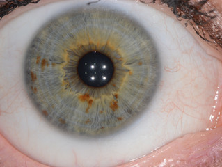 Iridology-What is it?