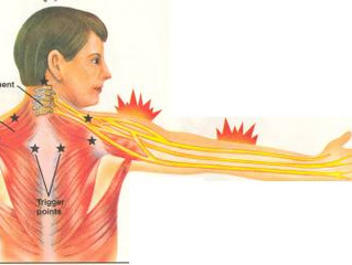 Top 3 stretches to relieve numbness & pain in arms/hands