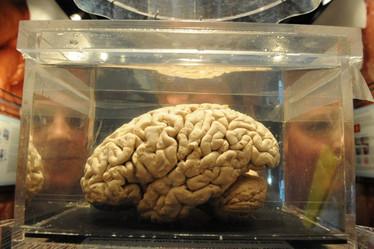 Gehirn.jpeg