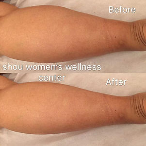 leg massage before & after.jpg
