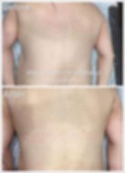 back massage before & after.jpg