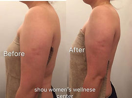 Arm massage before& after.jpg