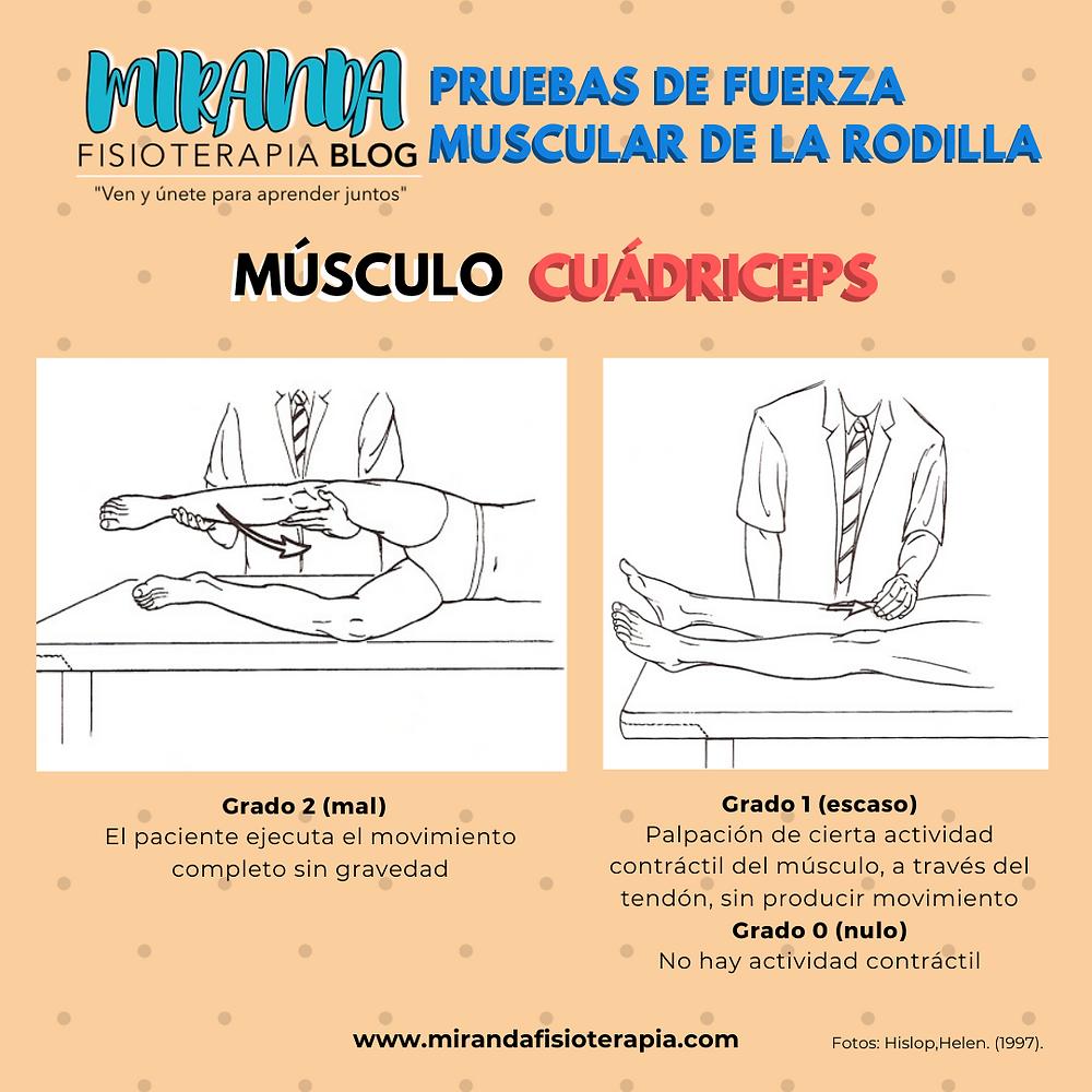 Pruebas de fuerza muscular de la rodilla: musculo cuádriceps extensor de rodilla (Grado 2,1 y 0)