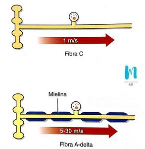 vías dolorosas periféricas: fibras A-delta y fibra C