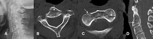 A: Rx AP. No se encuentran alteraciones.  B y C: TAC axial y D: TAC reconstrucción sagital. Fractura en sentido oblicuo, sobre el cuerpo de C2, por fractura de la odontoides tipo III. (Flechas).