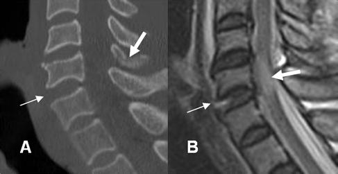 A: TAC reconstrucción lateral. Incremento del espacio intervertebral anterior entre C5 y C6. Fractura no desplazada en los elementos posteriores. (Flecha gruesa). B: RM sagital en T2. Ruptura del ligamento intervertebral común anterior. Hiperintensidad del cordón medular, por contusión asociada. (Flecha gruesa).