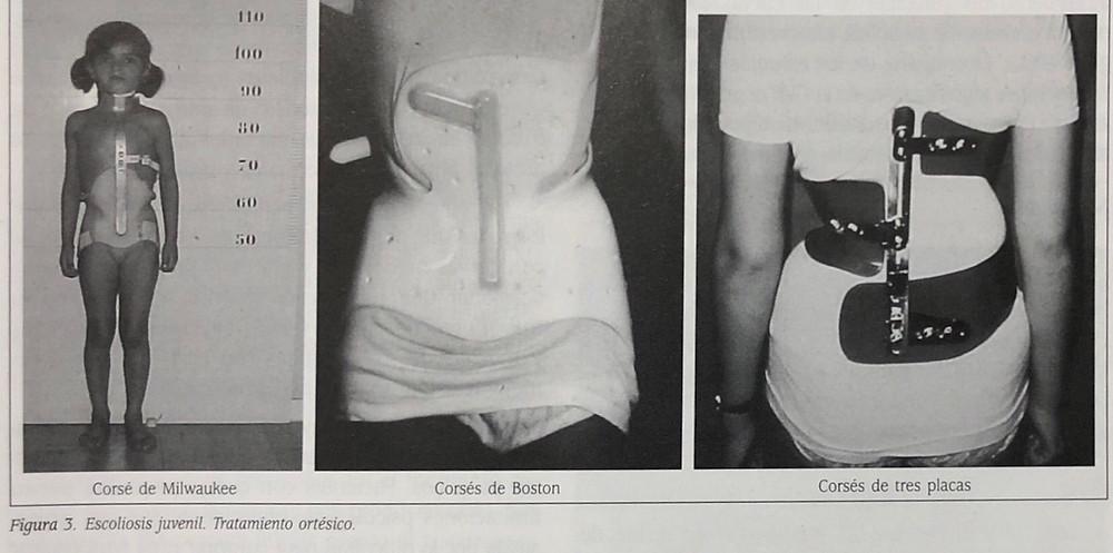 escoliosis juvenil. tratamiento de órtesis