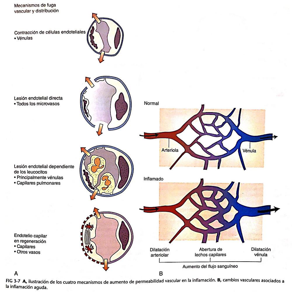 mecanismo de aumento de permeabilidad vascular en la inflamación
