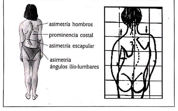 Diagnóstico de la escoliosis