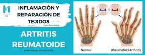 Artritis reumatoide: proceso de inflmación agudo